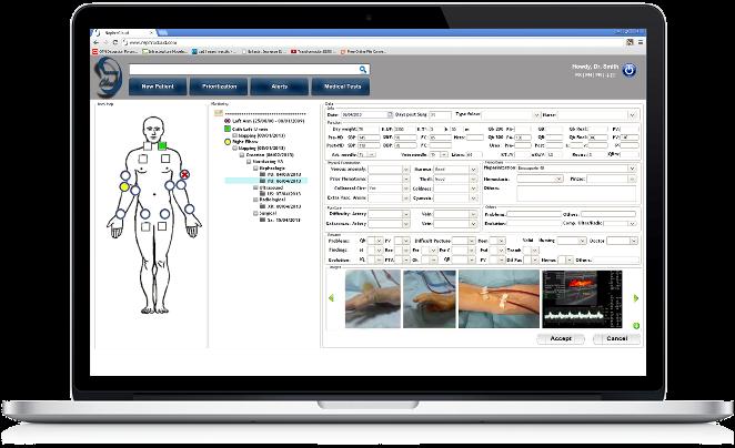 Vascular Access nephrology software